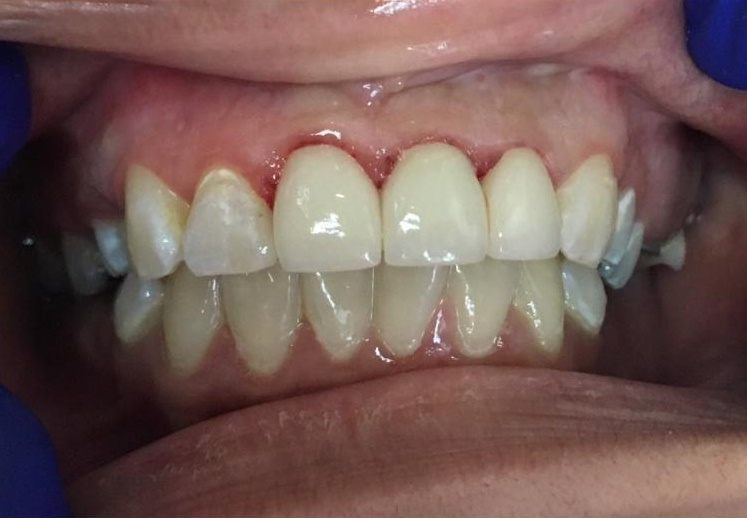 Restored w/ a Root Canal & Crowns