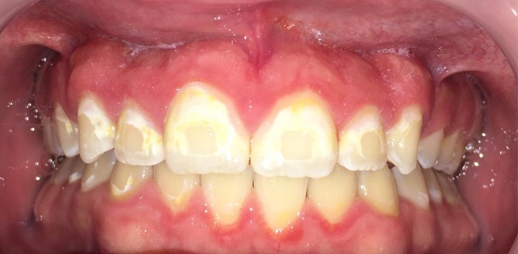 Decalcification from Braces