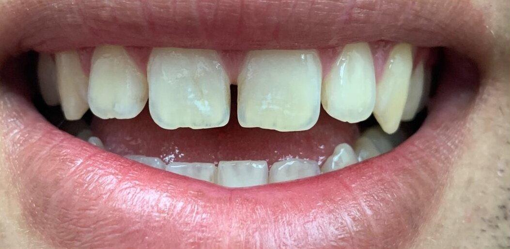 Diastema (Space Between Teeth)