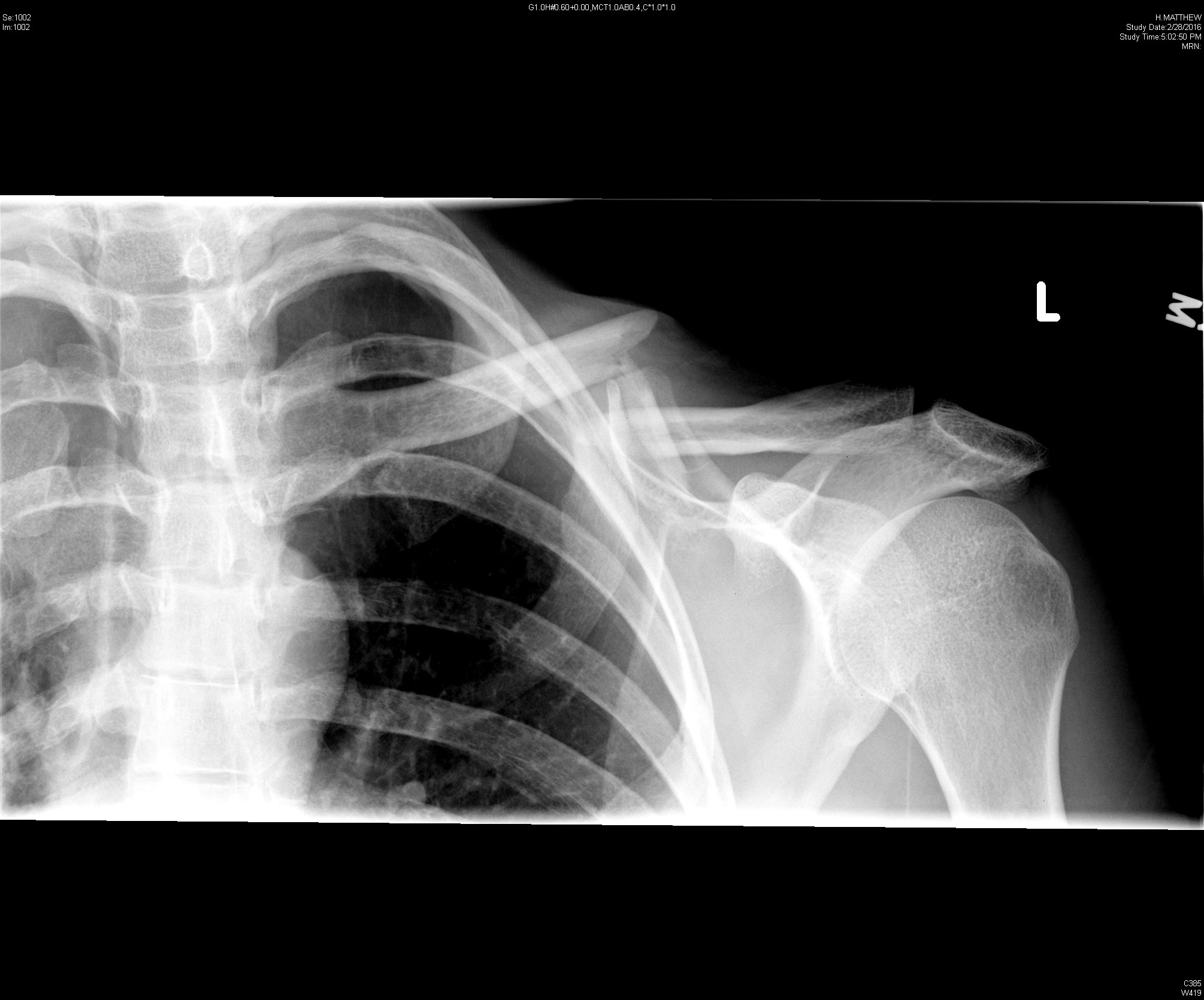 Figure 2: Clavicle radiograph showing mid-shaft clavicle fracture with displacement