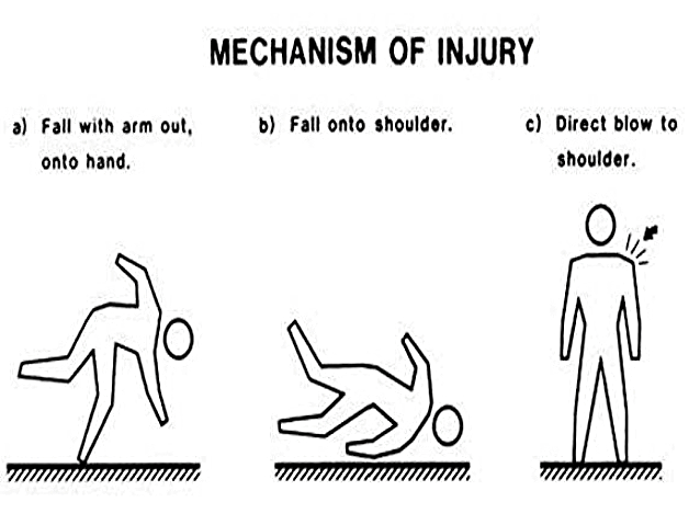 Figure 3: Common mechanisms of injury for clavicle fracture