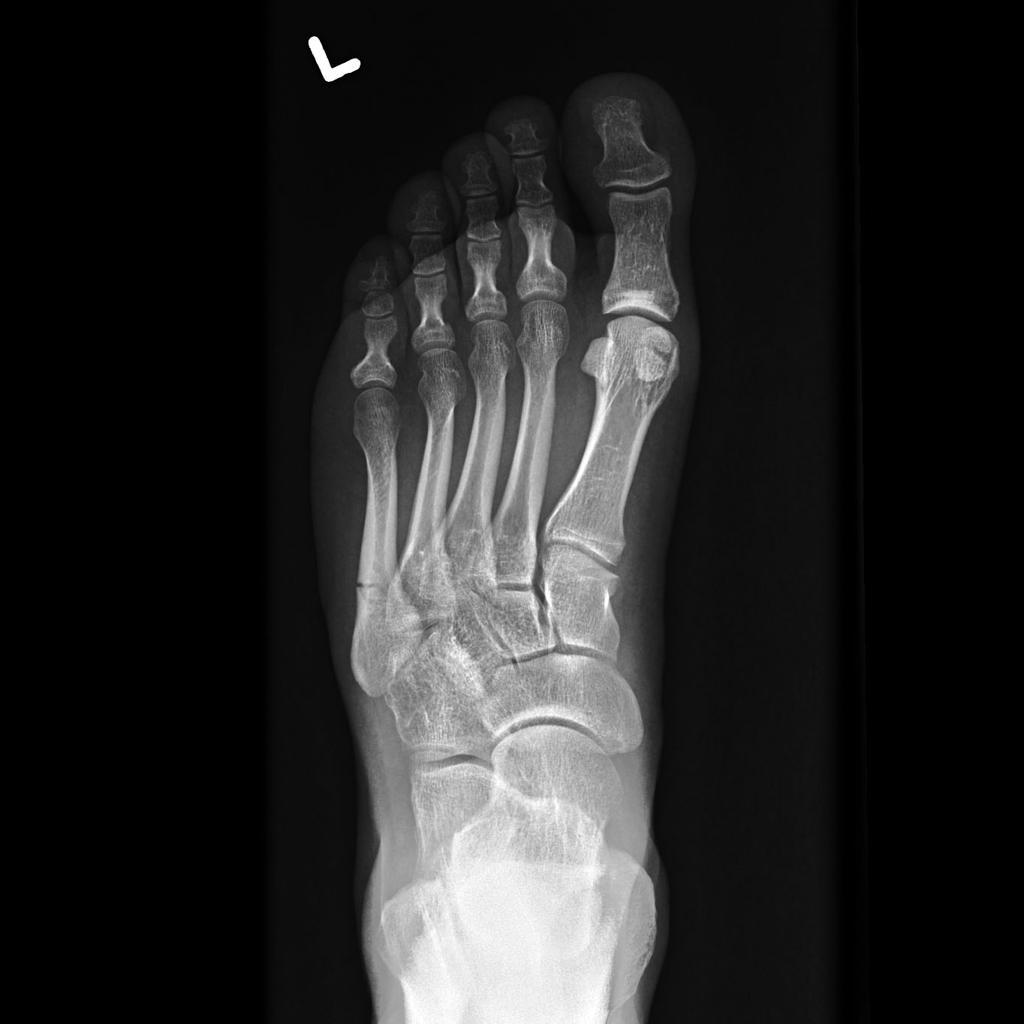 jones-fracture-4 (1).jpg