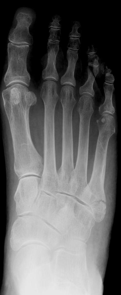 Figure 3: Zone 1 fracture