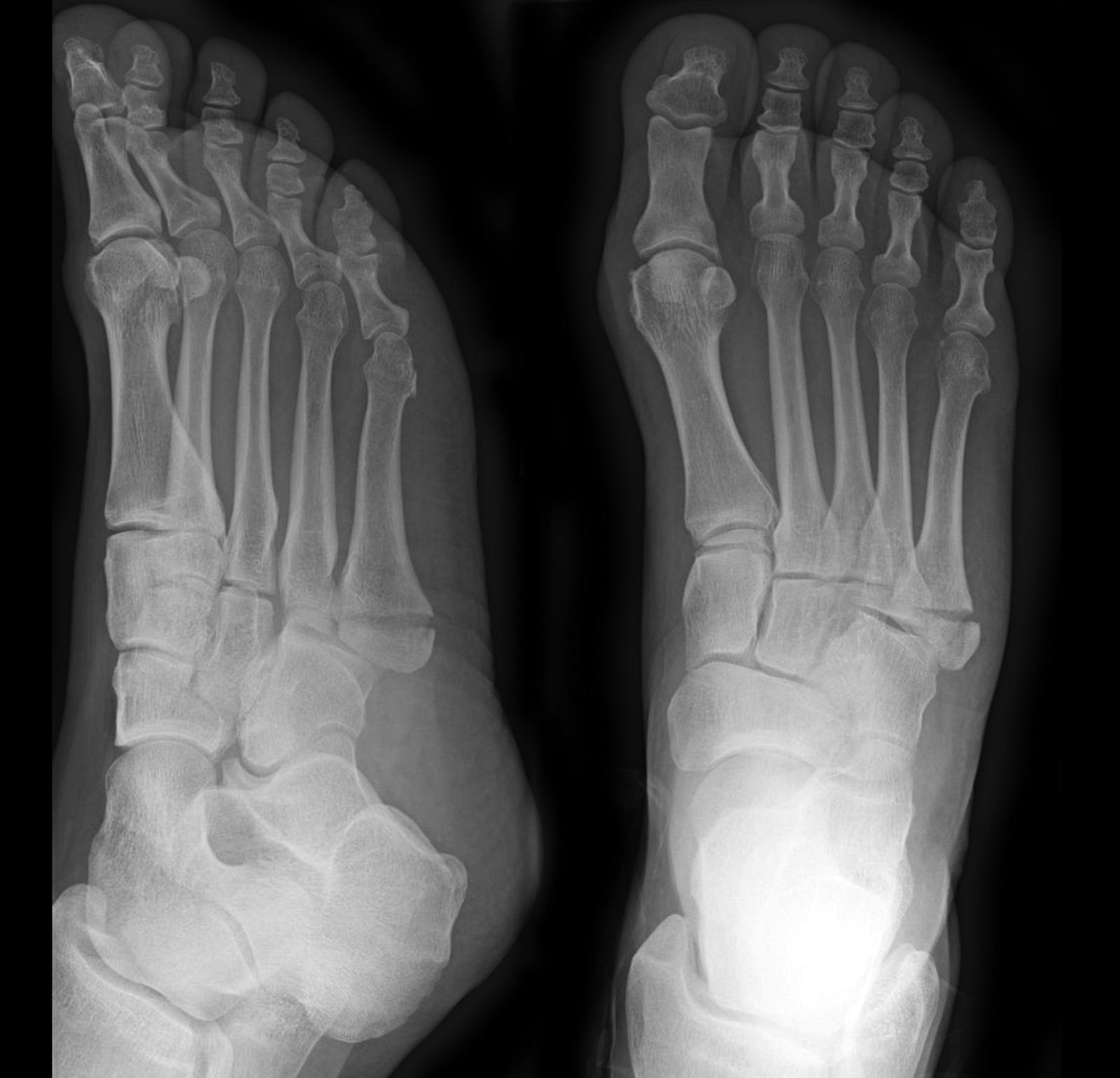 Figure 4: Zone 2 fracture