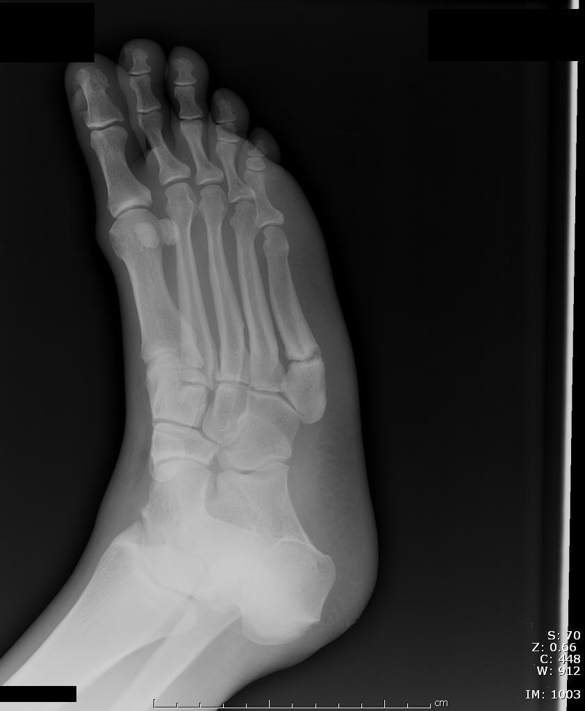 Figure 5: Zone 3 fracture