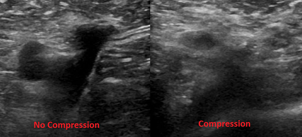 Figure 1: Right common femoral vein, with and without compression.