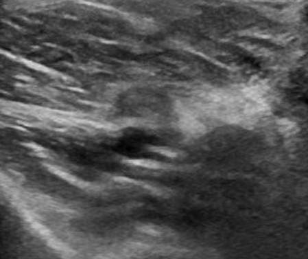 Figure 2: Right popliteal fossa axial view, with compression.