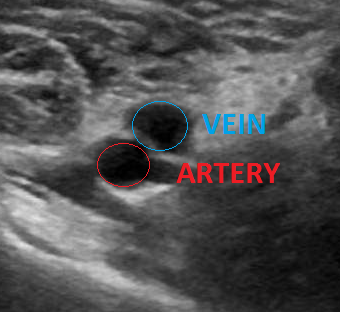 Figure 5: Just proximal to the image depicted in figure 4. Here the vein is no longer occluded by thrombus.