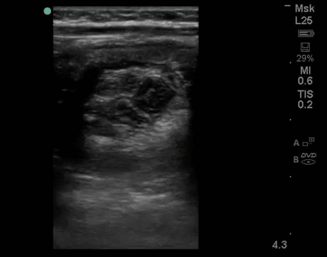 Figure 2a: Cross-sectional view of a donut-shaped mass, consistent with intussusception