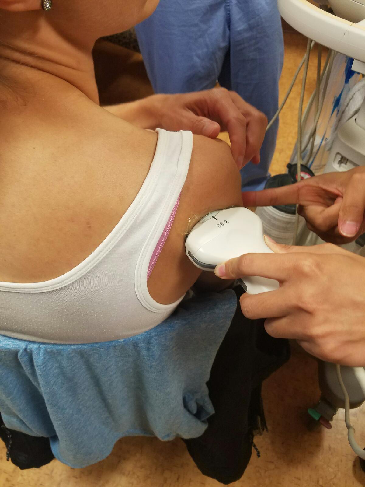 Figure 8: Representation of intra-articular lidocaine injection