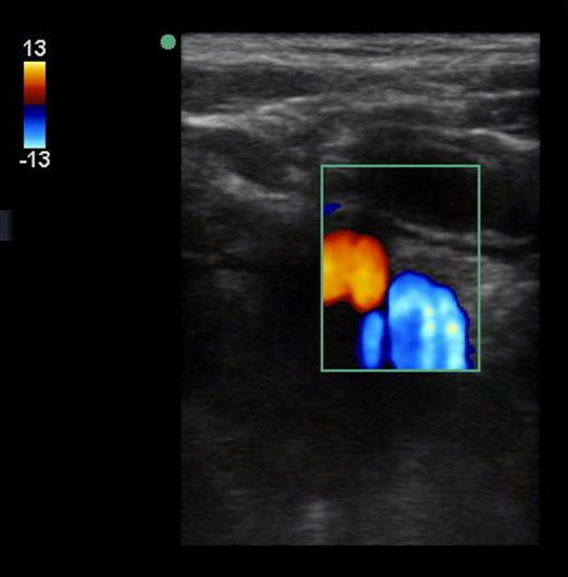 Figure 5: Appendix draping over the iliac vessels. Iliac vessels shown using color Doppler