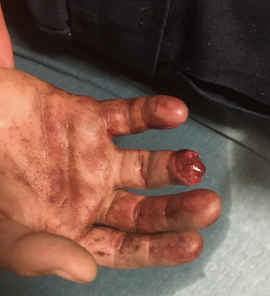 Image 1: Amputated right ring finger
