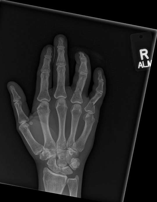 Image 2: Amputated right ring finger with multiple phalanx fractures