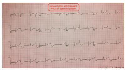This was the prehospital EKG