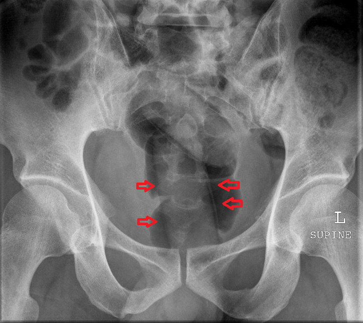 "Example of the ""double condom"" sign. Air trapping between latex seen at arrows.  Credit: Dr. Frank Gaillard: http://radiopaedia.org/. Image obtained from Radiology Picture of the Day: http://www.radpod.org/2007/09/30/body-packer/. Image modified with arrows. This work is licensed under a Creative Commons Attribution-Noncommercial 2.5 License."