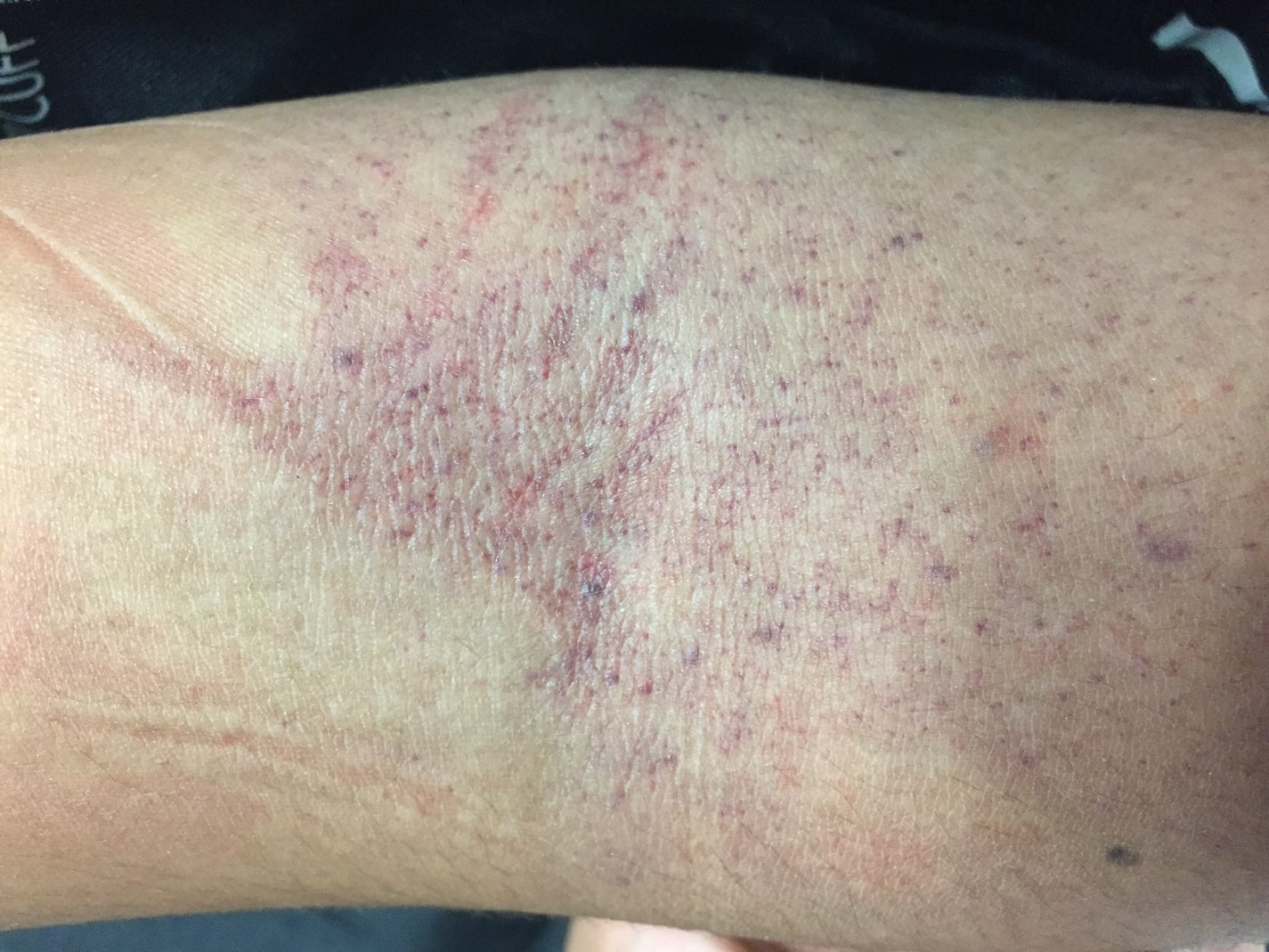 "Image 3: a close-up view of the patient's antecubital fossa. There are clearly greater than 10 petichiae within a square inch on this patient's arm, thus making a ""positive"" tourniquet test."