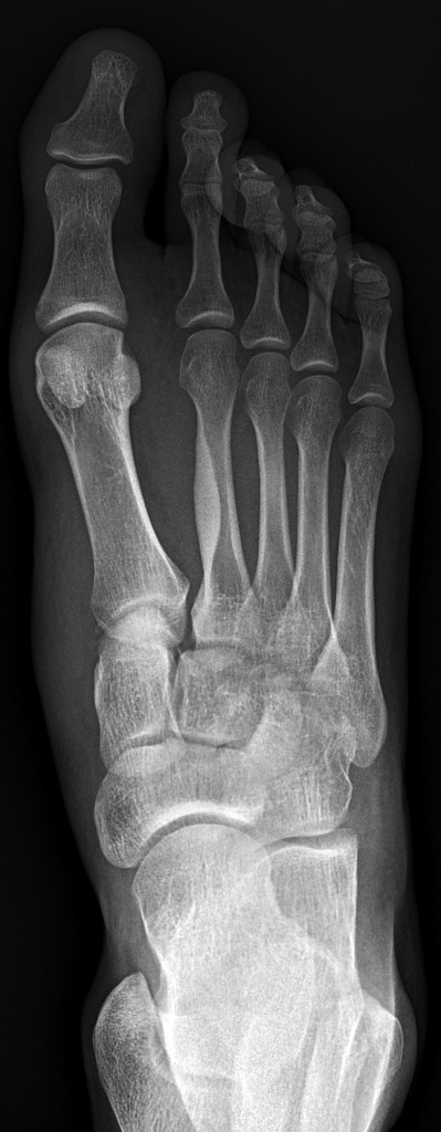 Image 4: Radiograph demonstrating malalignment of the medial and lateral borders of the third metatarsal and lateral cuneiform (Click to expand)