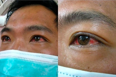 Figure 1: Conjunctival suffusion. Source: American Journal of Tropical Medicine and Hygiene, 2012.