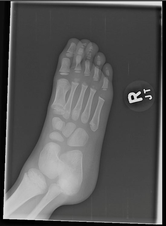 Oblique Right Foot XR.png