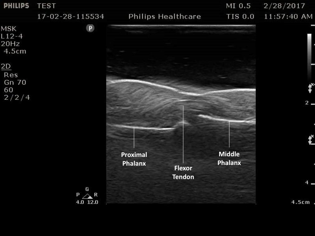 Figure 5.   Normal flexor tendon anatomy on ultrasound.