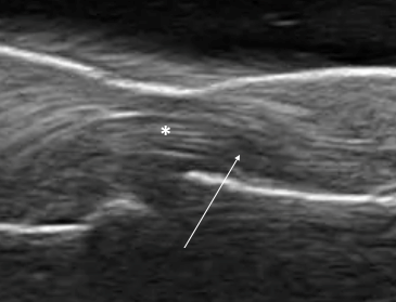 Figure 7. Example of anisotropy. Note the change in the flexor tendon from a hyperechoic signal (star) to a hypoechoic signal (arrow).