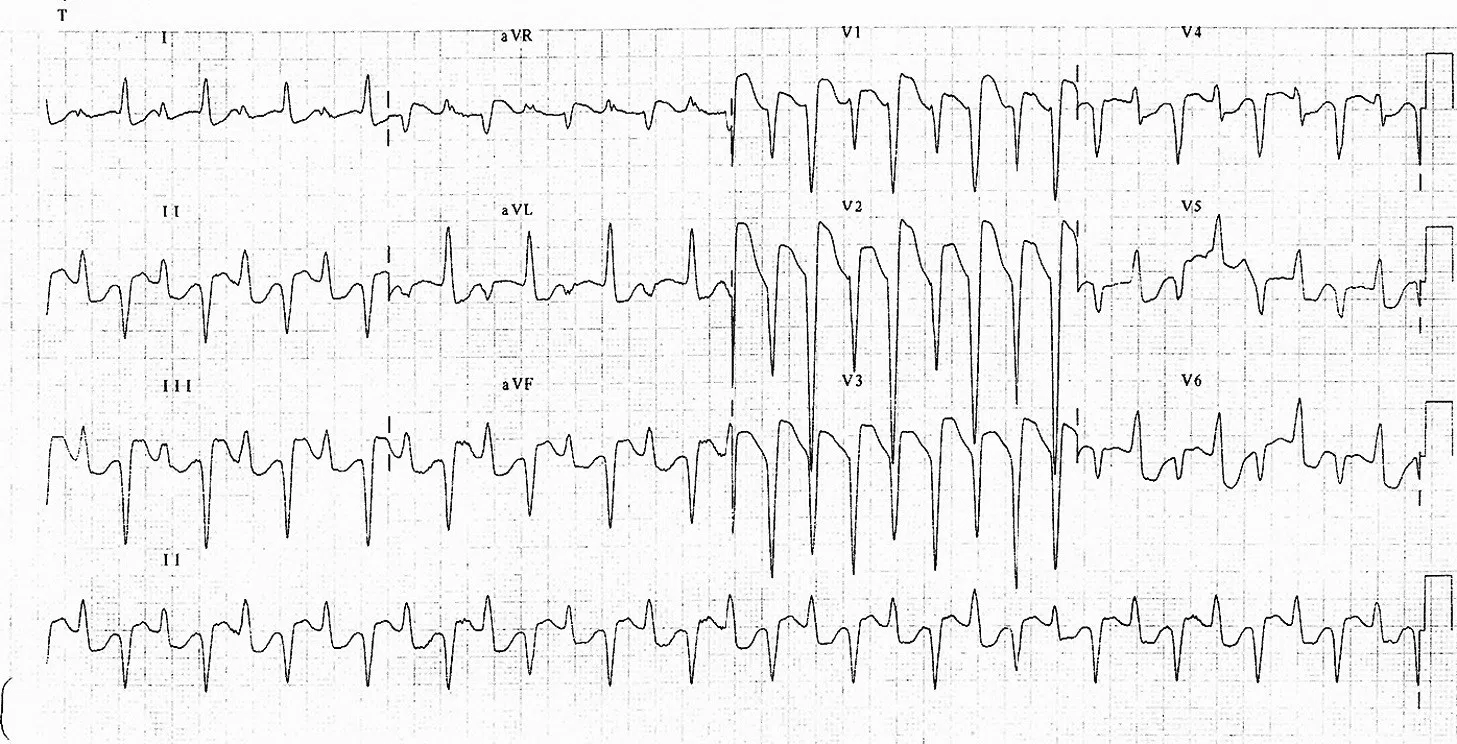 Figure 1 EKG.png