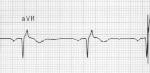 EKG Na Blocker.jpg