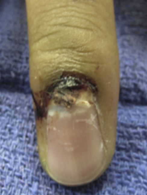 - On exam, his middle finger has dried blood at the base of the nail. The proximal nail appears partially avulsed. His finger appears flexed at the DIP although he is able to fire his extensors/flexors at the DIP. He has no sensory deficits.