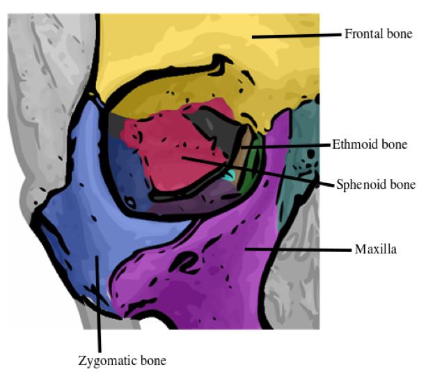 Orbital Floor Blowout Fracture — Brown
