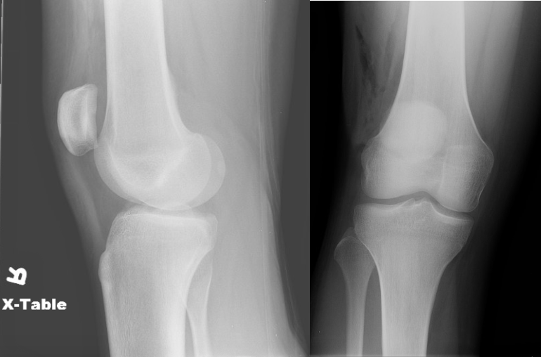 Figure 2: Lateral and AP right knee radiographs