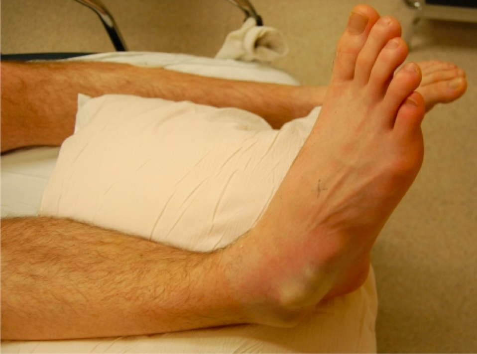 Figure 1: Right foot physical examination findings.  Pictures: http://westjem.com/articles/subtalar-dislocation.html