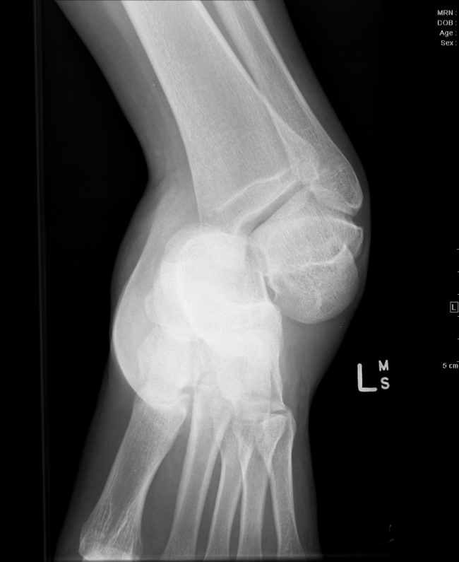 Figure 3: AP view of medial subtalar dislocation.   http://www.radpod.org/wp-content/uploads/2011/05/ser000img000011.jpg