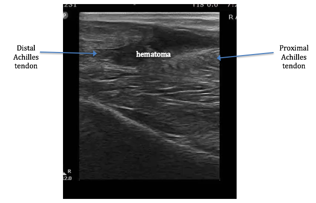 Figure 1: Ultrasound showing Achilles tendon rupture. Image courtesy of Dr. Timothy Boardman.