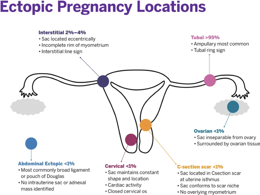 Figure 1. Range of locations at which an ectopic pregnancy might be located.[5]