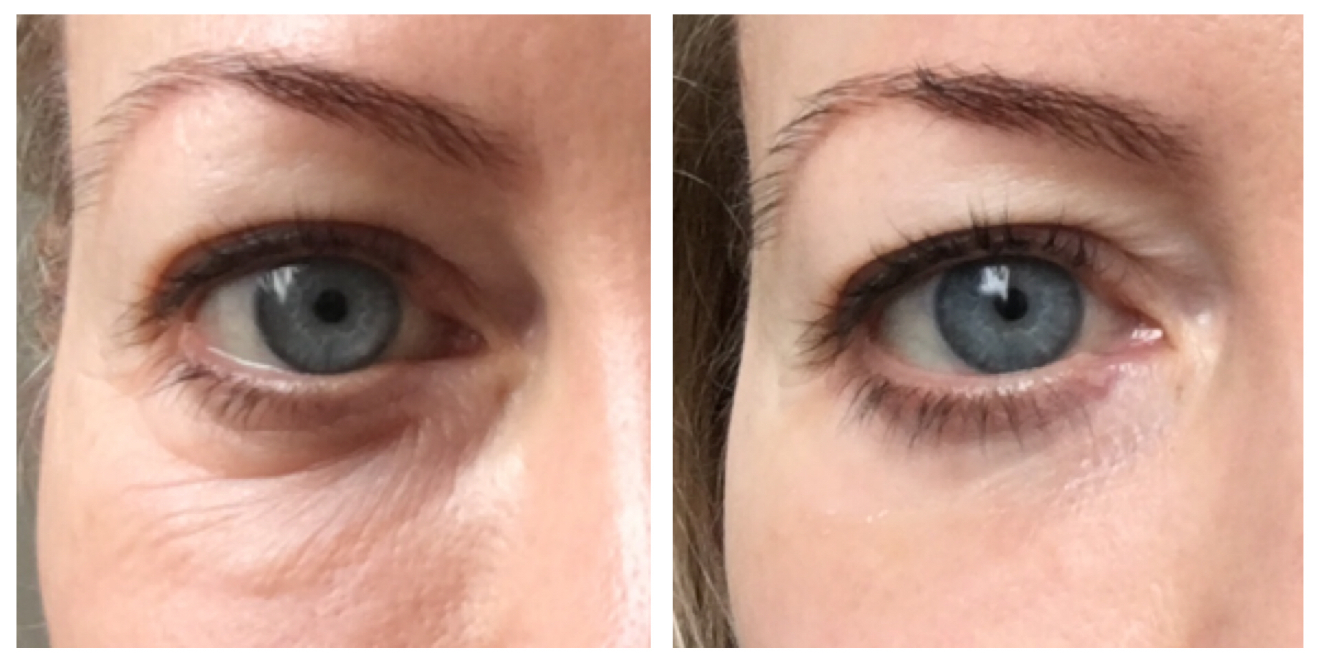 Now you see it, now you don't: my right eye before (left) and after using My Perfect Eyes serum