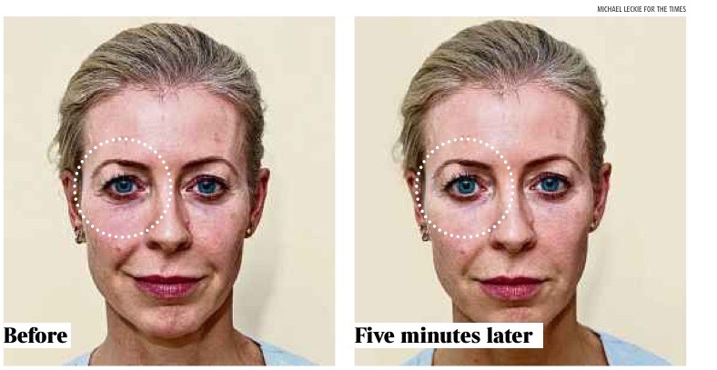 The before and after pictures from The Times, by Michael Leckie