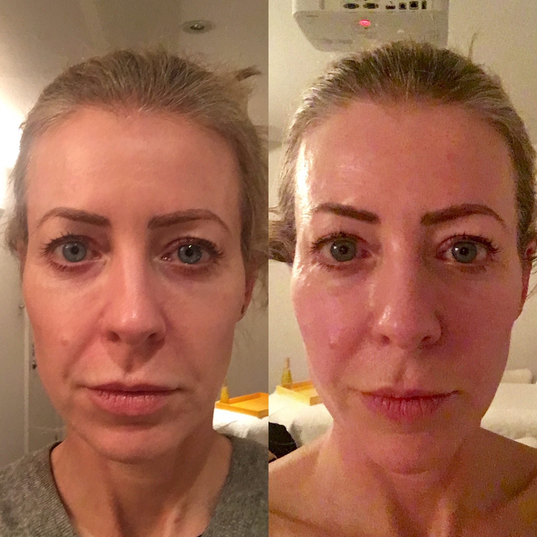 Before - left - and after a session of Decleor's new 'facial pilates' face massage