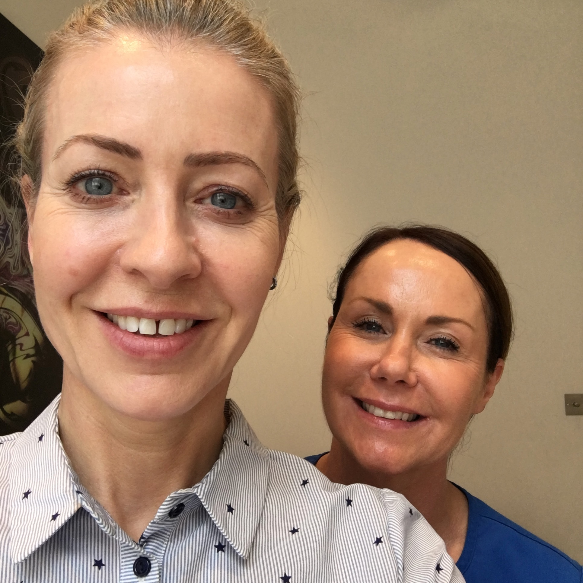 With Esther Loughran, a leading aesthetic nurse who has been doing Ultherapy for years.