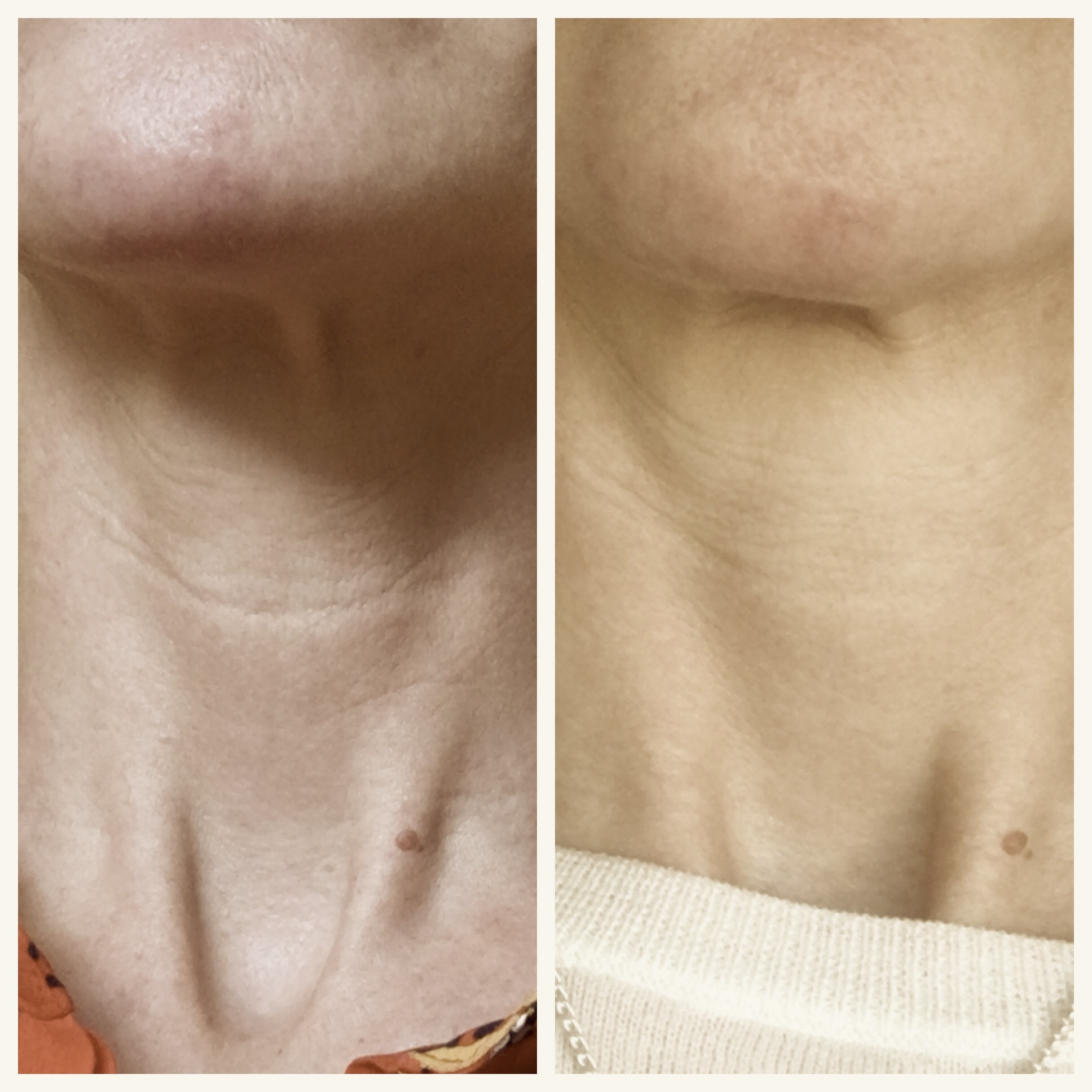 My neck before (left)and after treatment. The light's not the same, but you can see the change