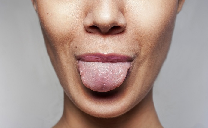 acupuncture diagnosis tongue and pulse acusoul