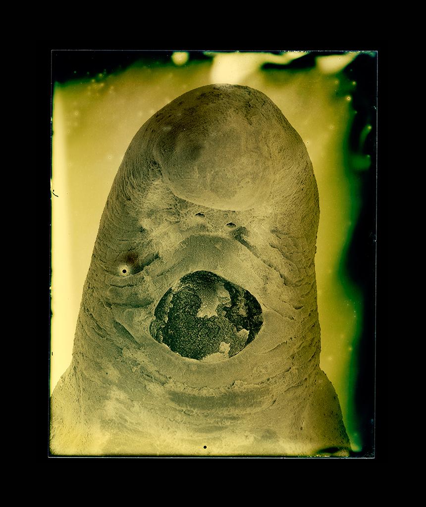Diphyllobothrium latum (larva)