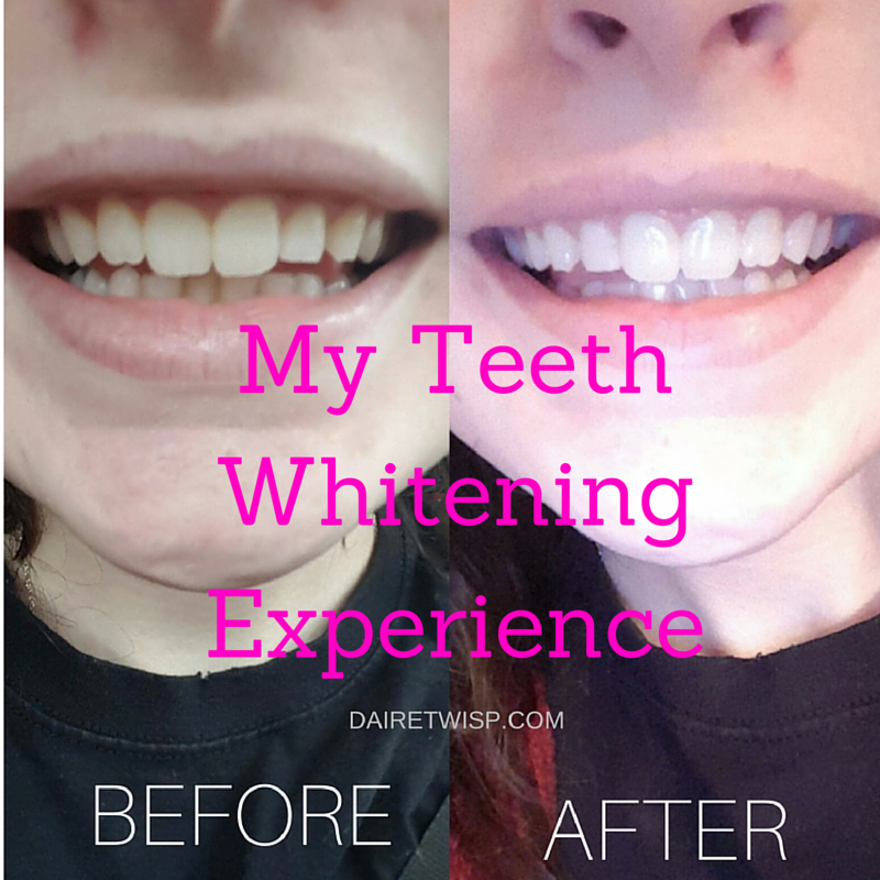 my-teeth-whitening-experience.png