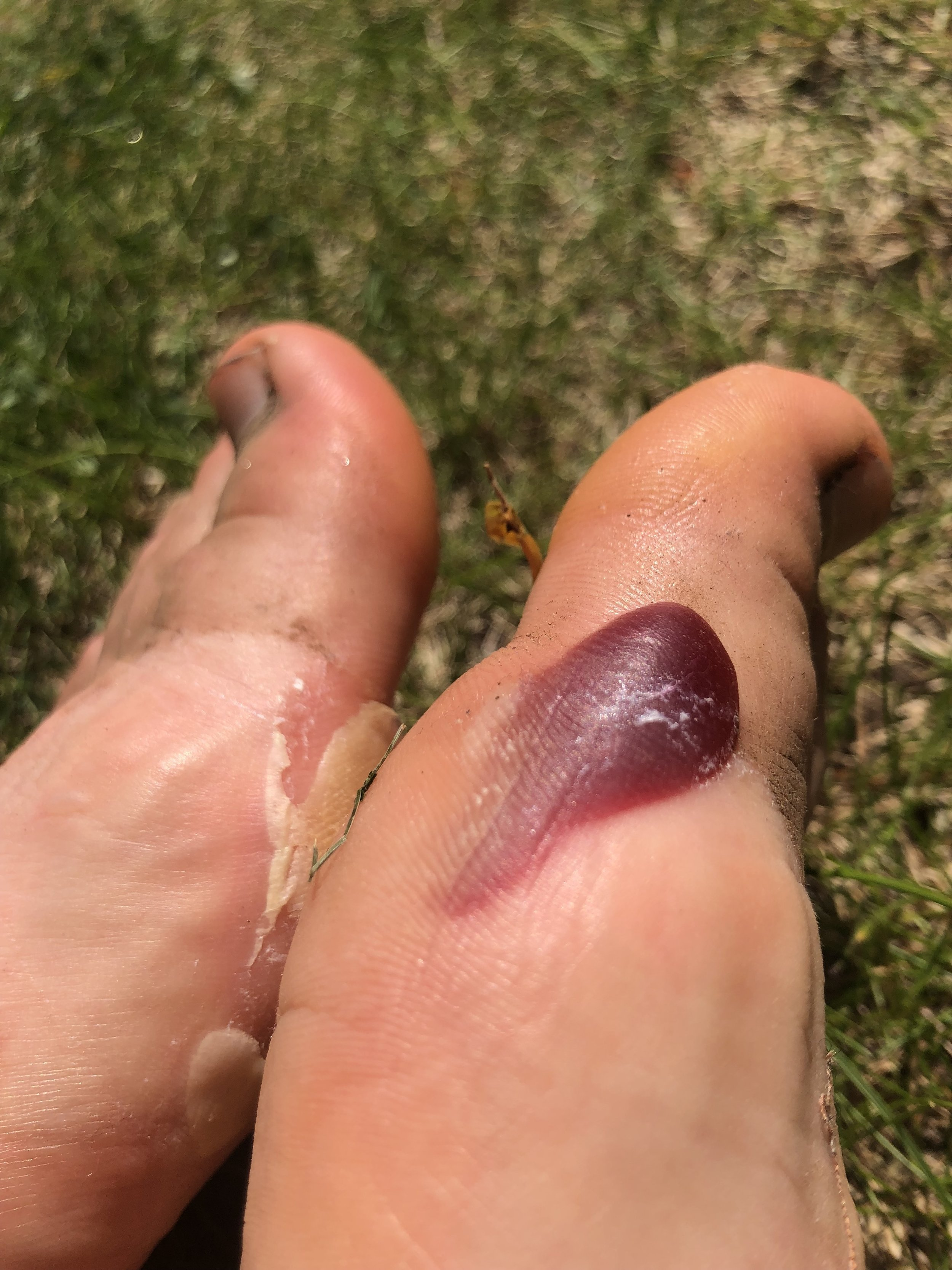 I feel like it's a testament to how shitty my day was, that I didn't even register the fact I was growing giant blood blisters until after I took my shoes off at the finish line. Quite proud of this one, actually. That colour…