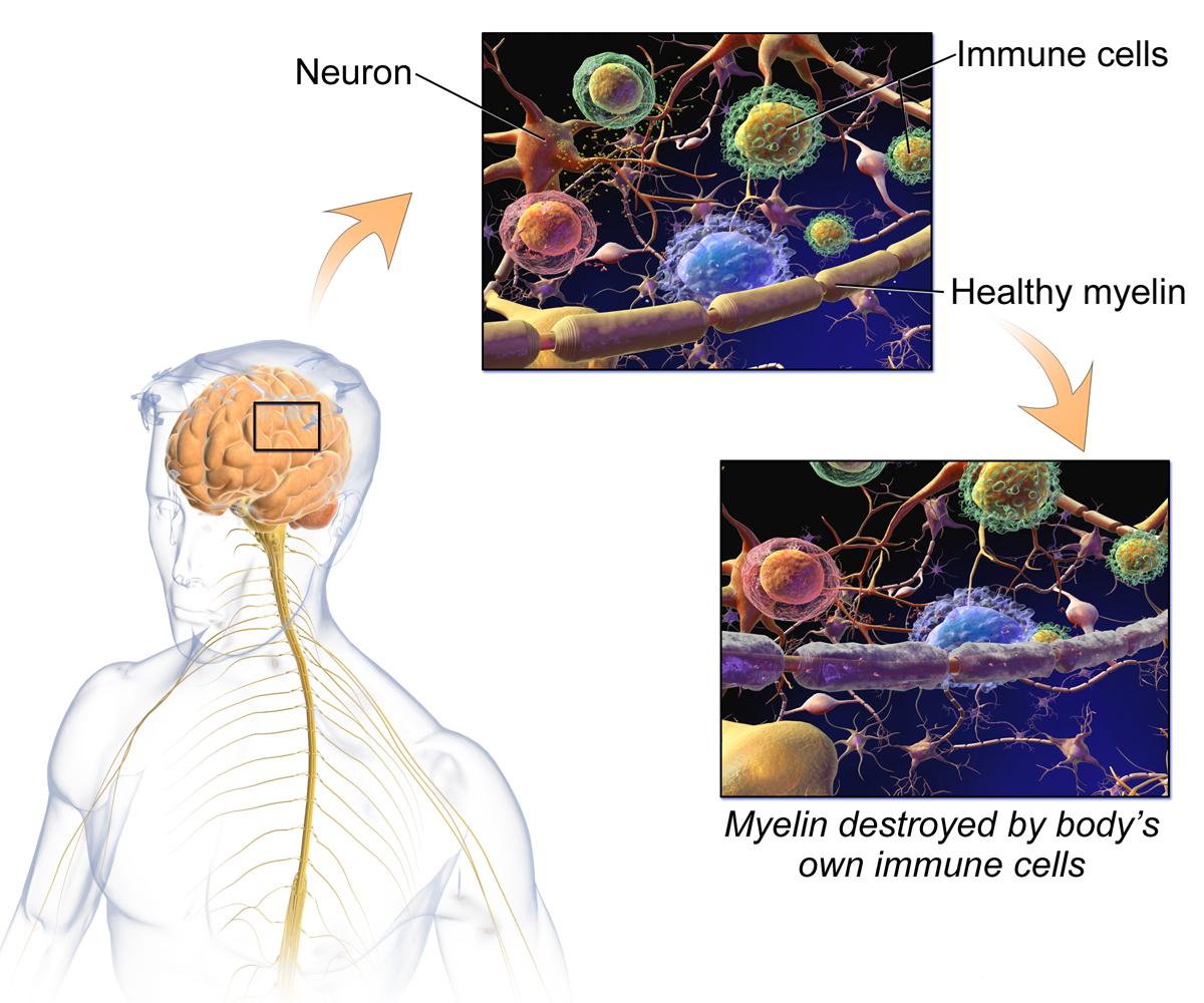 How Multiple Sclerosis damages the nerves' Myelin sheaths.