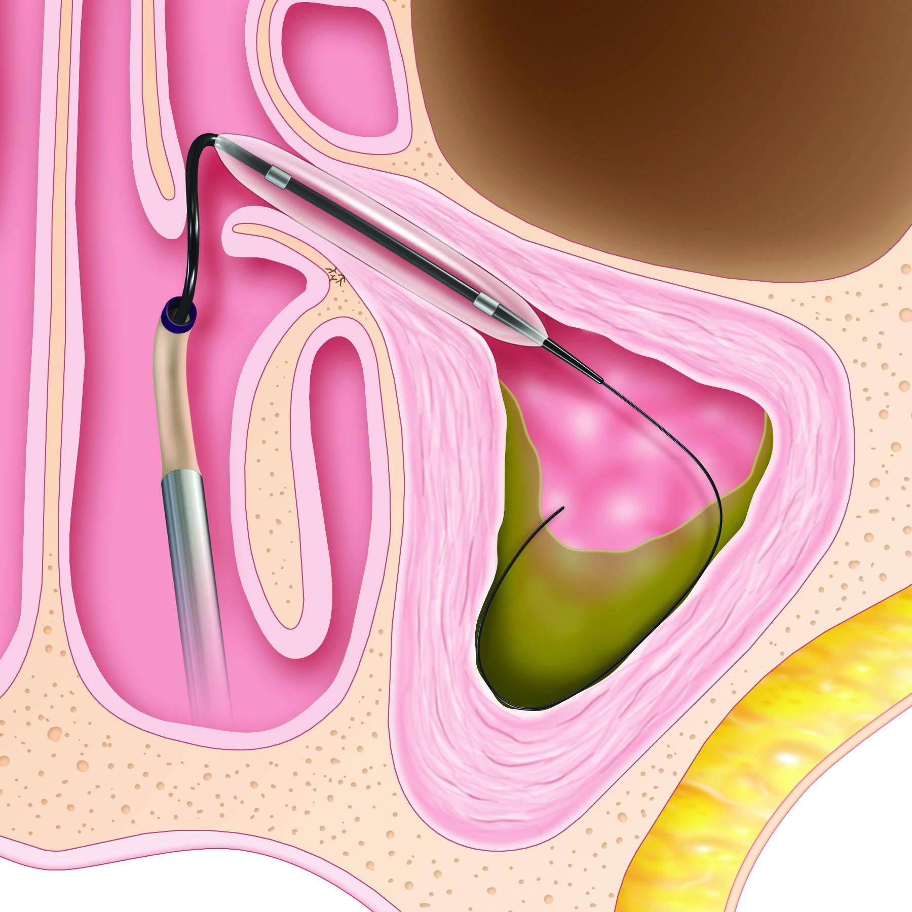 Maxillary Procedure Step 2.jpg