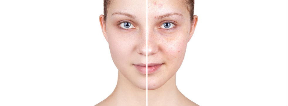 skin-lab-super-skin-rejuvenation-brighton.jpg