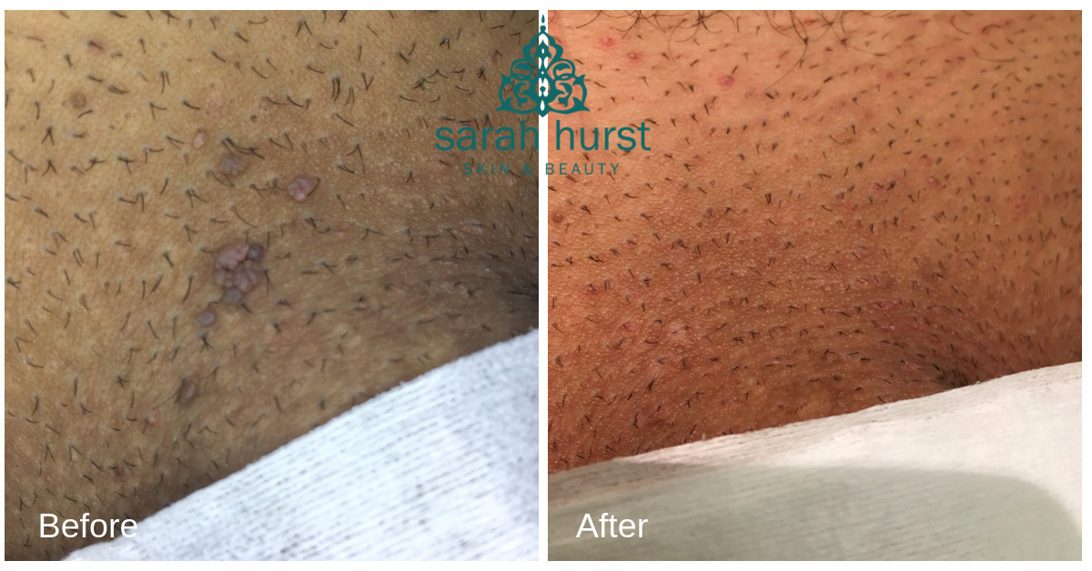 Skin tag removal with advanced electrolysis in Brighton