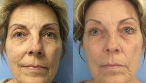 Before and After Celluma LED course of treatments