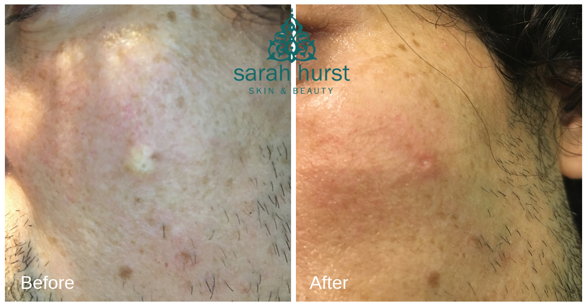 Before and after sebaceous cyst advanced electrolysis copy.png