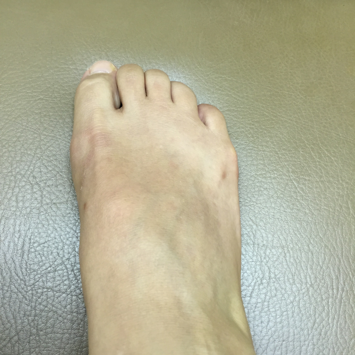 My feet are literally Rectangles. So I sized up once to fit my Dainese since they're so narrow. This photo was taken a couple days after my accident several years ago wearing my old  Sidis.  Just some bruising and swelling, no breaks/fractures/sprains.